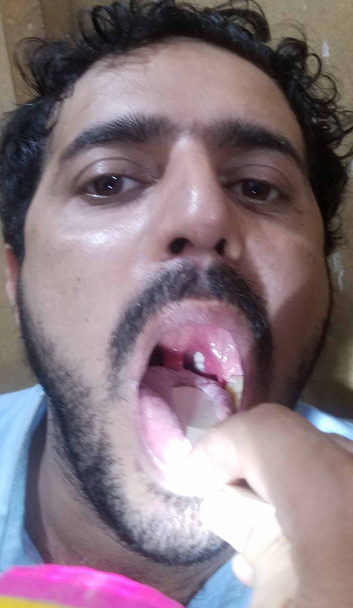 Strep Throat Causes || Symptoms|| Picture || Treatment